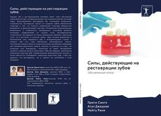Bookcover of Силы, действующие на реставрации зубов