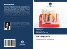 Обложка Zahnimplantate