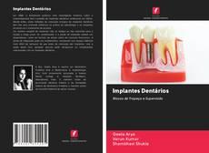 Implantes Dentários的封面