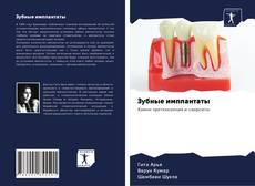 Copertina di Зубные имплантаты
