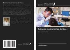 Portada del libro de Fallas en los implantes dentales