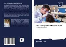 Bookcover of Отказы зубных имплантатов