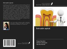 Buchcover von Extrusión apical