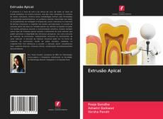 Buchcover von Extrusão Apical