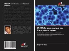 Bookcover of IRESSA: una manna per il cancro al colon