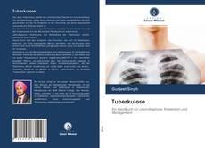 Bookcover of Tuberkulose
