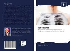Bookcover of Туберкулёз