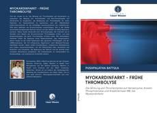 MYOKARDINFARKT - FRÜHE THROMBOLYSE kitap kapağı