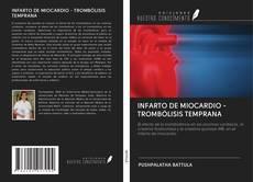 Portada del libro de INFARTO DE MIOCARDIO - TROMBÓLISIS TEMPRANA