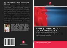 Copertina di ENFARTE DO MIOCÁRDIO - TROMBÓLISE PRECOCE