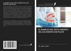 EL MANEJO DEL ÁPICE ABIERTO EN LOS DIENTES SIN PULPA的封面