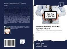 Bookcover of Полипы толстой кишки и прямой кишки