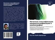 Buchcover von Нечеткая классификация микрокальцификации в маммографии