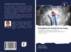 Bookcover of Сосудистая аллергия на лицо