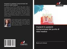 Copertina di Impianti in pazienti compromessi dal punto di vista medico