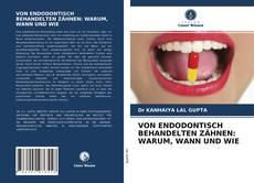 Capa do livro de VON ENDODONTISCH BEHANDELTEN ZÄHNEN: WARUM, WANN UND WIE