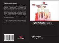 Buchcover von Implantologie basale