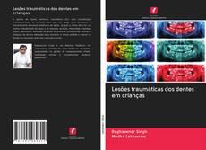 Bookcover of Lesões traumáticas dos dentes em crianças