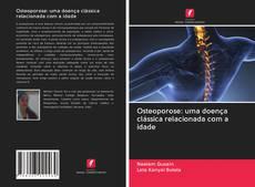 Buchcover von Osteoporose: uma doença clássica relacionada com a idade