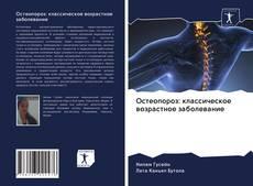 Couverture de Остеопороз: классическое возрастное заболевание