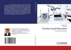Bookcover of The Root Canal Obturation