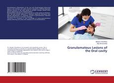 Bookcover of Granulomatous Lesions of the Oral cavity