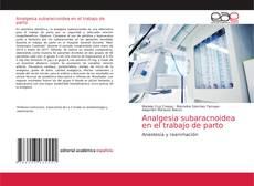 Bookcover of Analgesia subaracnoidea en el trabajo de parto