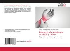 Capa do livro de Fracturas de antebrazo, muñeca y mano