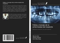 Bookcover of Fallas y manejo de la enfermedad del implante