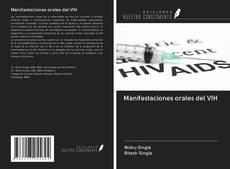 Bookcover of Manifestaciones orales del VIH