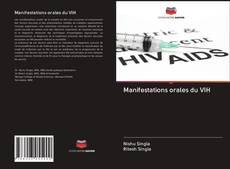 Bookcover of Manifestations orales du VIH