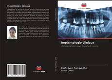 Buchcover von Implantologie clinique