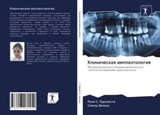 Bookcover of Клиническая имплантология