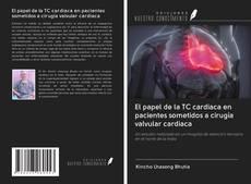 Обложка El papel de la TC cardiaca en pacientes sometidos a cirugía valvular cardiaca