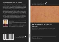 Capa do livro de Escleroterapia dirigida por catéter