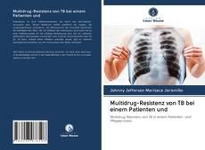 Multidrug-Resistenz von TB bei einem Patienten und kitap kapağı