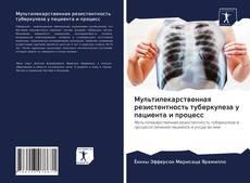 Обложка Мультилекарственная резистентность туберкулеза у пациента и процесс