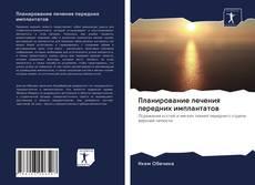 Bookcover of Планирование лечения передних имплантатов
