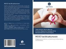 Bookcover of PET/CT bei Brusttumoren