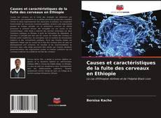 Bookcover of Causes et caractéristiques de la fuite des cerveaux en Ethiopie