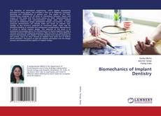 Bookcover of Biomechanics of Implant Dentistry
