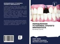 Bookcover of НЕМЕДЛЕННАЯ УСТАНОВКА ЗУБНОГО ИМПЛАНТАТА