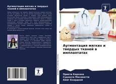 Bookcover of Аугментация мягких и твердых тканей в имплантатах