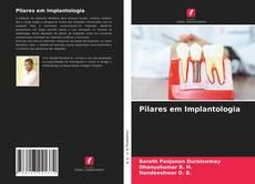 Pilares em Implantologia的封面