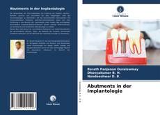 Buchcover von Abutments in der Implantologie