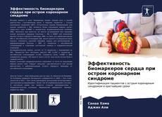 Couverture de Эффективность биомаркеров сердца при остром коронарном синдроме