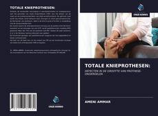 Bookcover of TOTALE KNIEPROTHESEN: