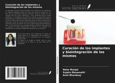 Capa do livro de Curación de los implantes y biointegración de los mismos