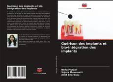 Capa do livro de Guérison des implants et bio-intégration des implants