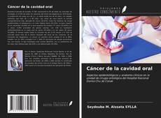Bookcover of Cáncer de la cavidad oral